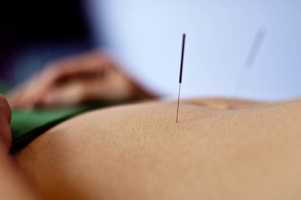 5 Astounding Beauty Benefits of Acupuncture Therapy And Pre-Therapy Precautions